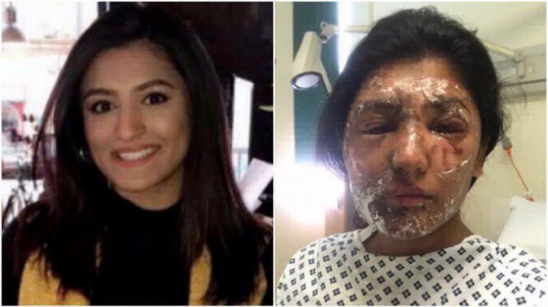 Происшествия: В Лондоне девушку в день рождения облили кислотой
