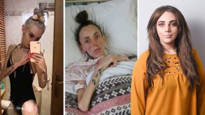Здоровье и красота: Анорексия: неосведомленность о болезни поражает