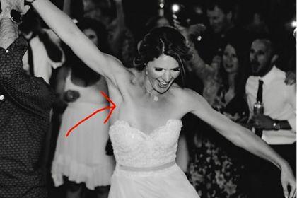 Общество: Фото со свадьбы помогло невесте выявить рак
